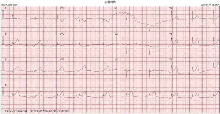 雲林縣消防局第三大隊北港分隊執行胸悶胸痛急病救護